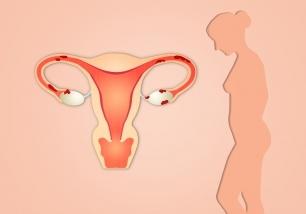 Amerikaans onderzoek endometriose